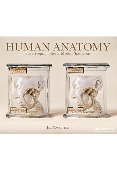 Human Anatomy : Stereoscopic Images of Medical Specimens